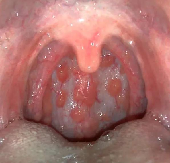 Bệnh viêm họng hạt là gì?