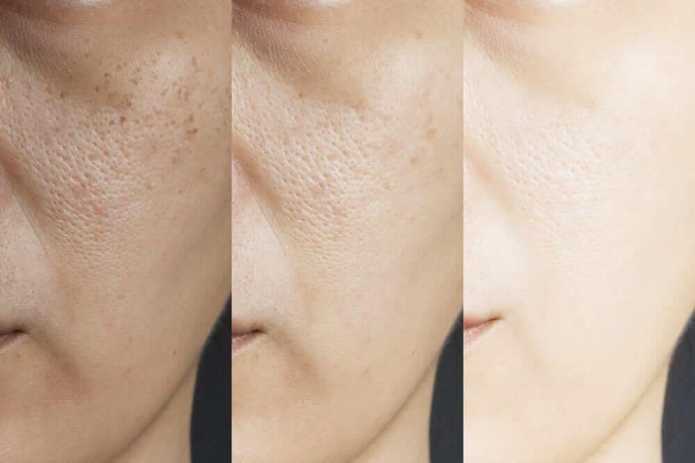 Nám da và điều trị nám